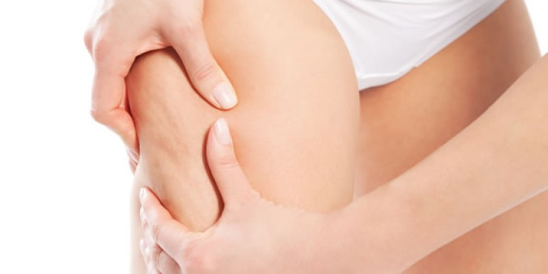 5 Tips to Attack Cellulite